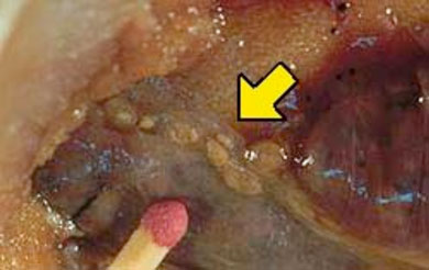 Worms and Human Disease